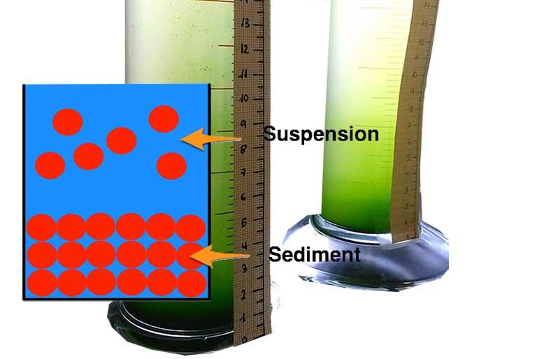 Sedimantasyon Hızı Testi Nedir? Sedimantasyon Normal Değerleri