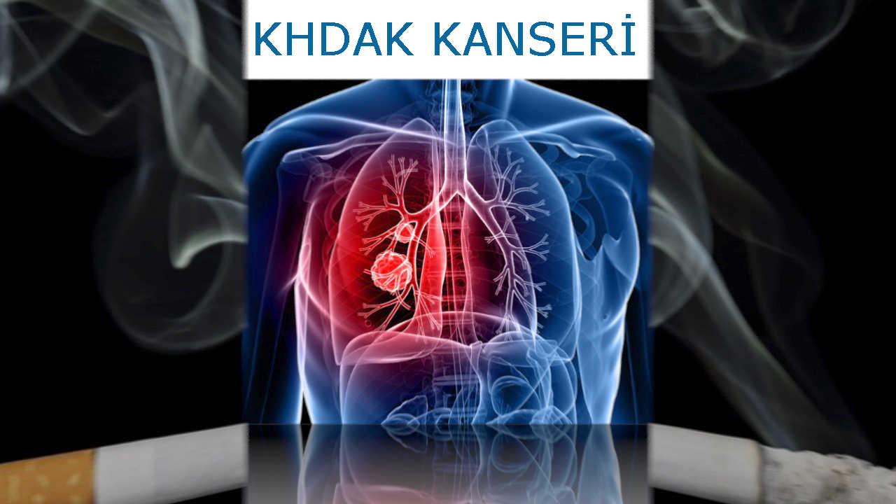 Akciğer kanseri aşamaları ile Etiketlenen Konular 22