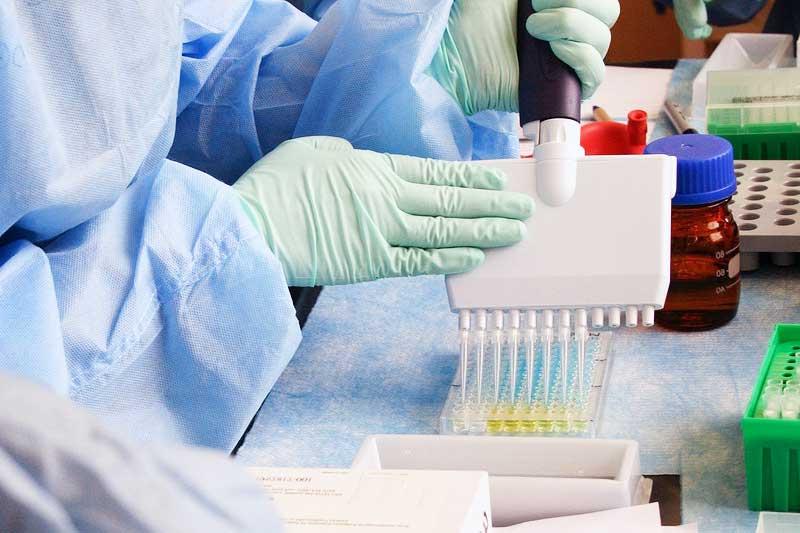 Covid-19 antikor hızlı test kiti Corona antikor testiEliza antikor testi nedir